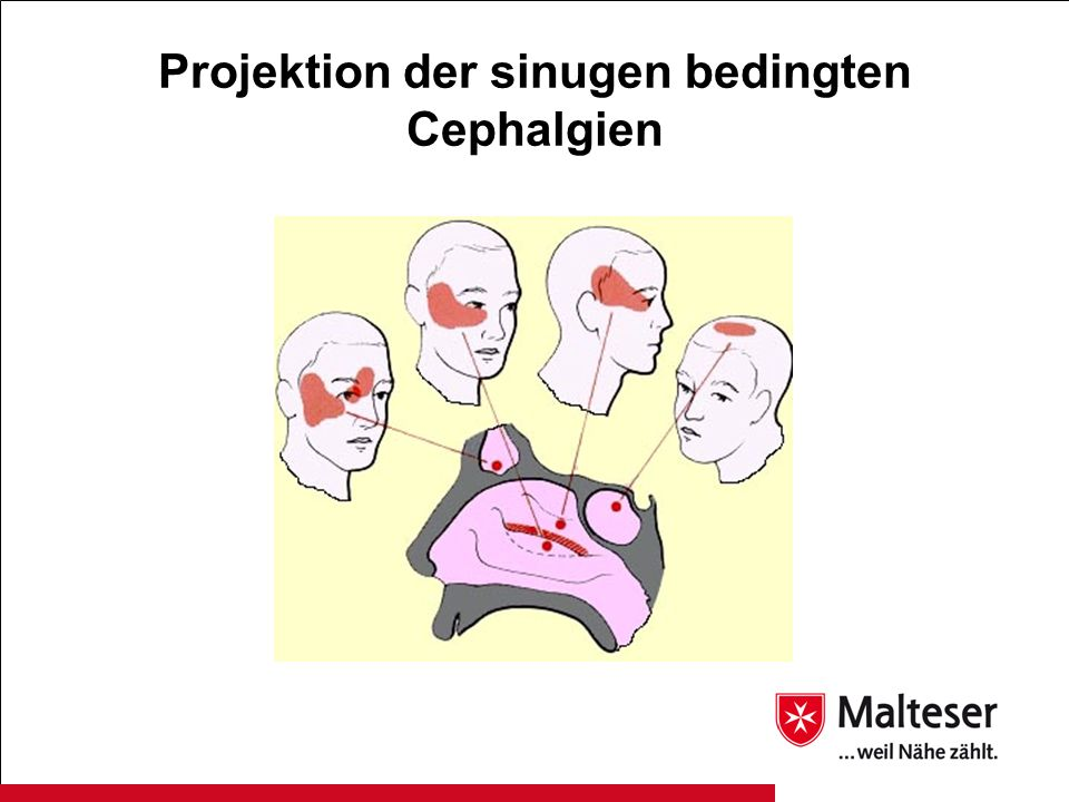 Projektion der sinugen bedingten Cephalgien