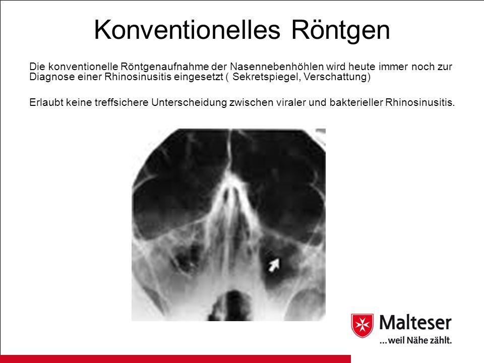 Konventionelles Röntgen Die konventionelle Röntgenaufnahme der Nasennebenhöhlen wird heute immer noch zur Diagnose einer Rhinosinusitis eingesetzt ( S