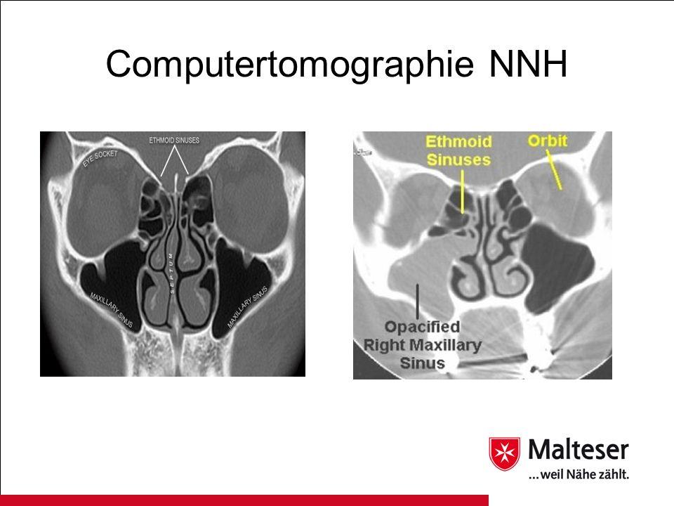 Computertomographie NNH