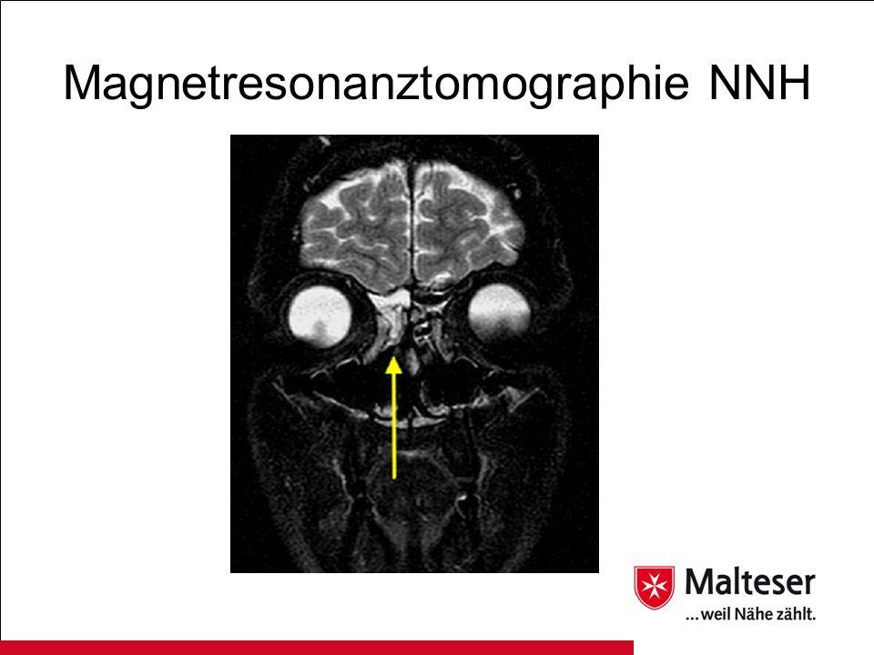 Magnetresonanztomographie NNH