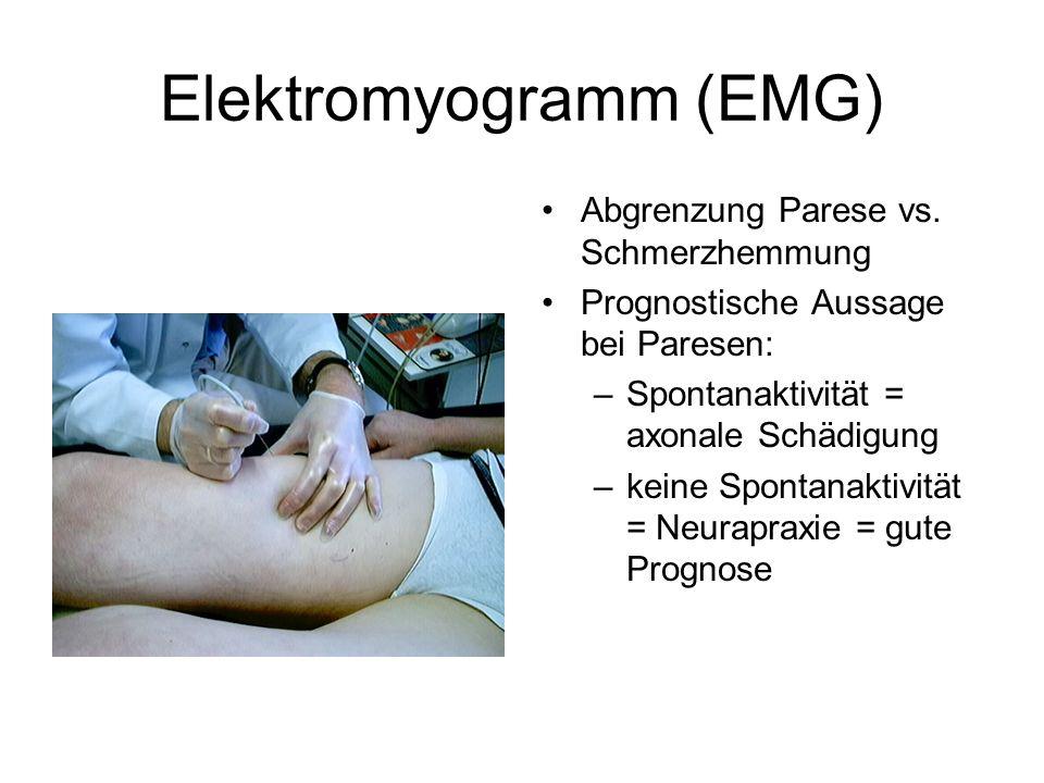 Elektromyogramm (EMG) Abgrenzung Parese vs. Schmerzhemmung Prognostische Aussage bei Paresen: –Spontanaktivität = axonale Schädigung –keine Spontanakt