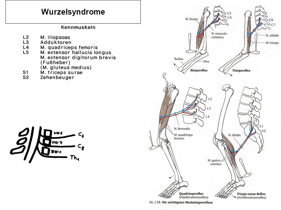 Wurzelsyndrome