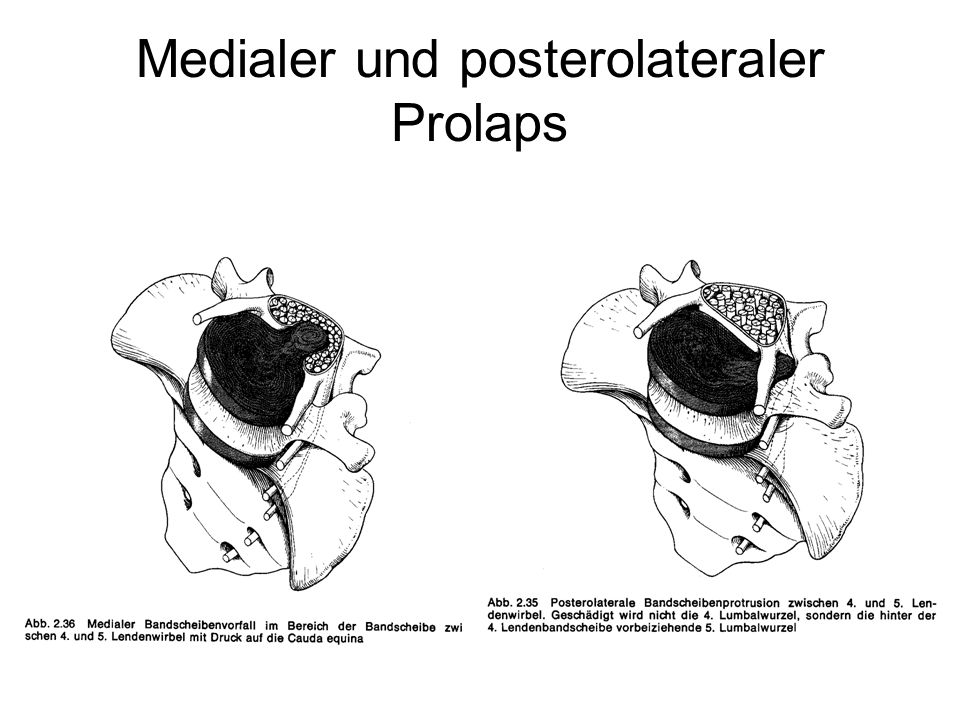 Spontanverlauf Medianer Vorfall mit Duralsackkompression Ausgangsbefund nach 6 Monaten Schumacher et al., Radiologe 1990; 30: 492-496