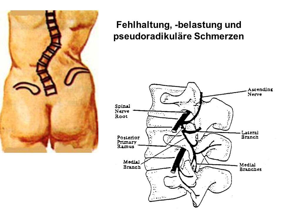 Dorsolateraler Vorfall mit Duralsackkompression Ausgangsbefund nach 6 Monaten Schumacher et al., Radiologe 1990; 30: 492-496