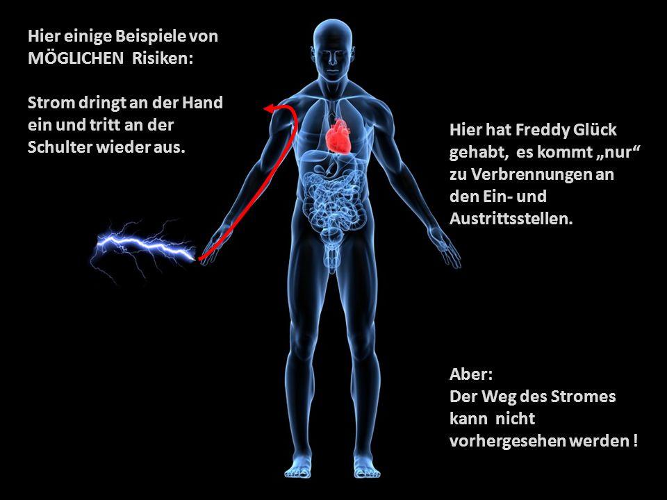 Hier einige Beispiele von MÖGLICHEN Risiken: Strom dringt an der Hand ein und tritt an der Schulter wieder aus. Hier hat Freddy Glück gehabt,es kommt