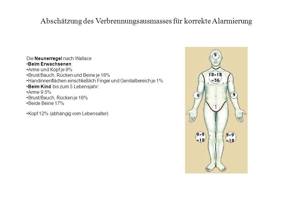 Abschätzung des Verbrennungsausmasses für korrekte Alarmierung Die Neunerregel nach Wallace Beim Erwachsenen: Arme und Kopf je 9% Brust/Bauch, Rücken
