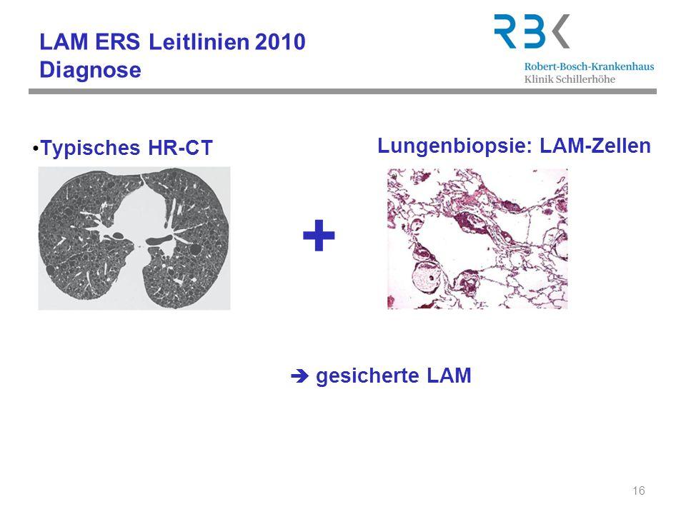 LAM ERS Leitlinien 2010 Diagnose Typisches HR-CT Kennzeichen der LAM: 16 gesicherte LAM + Lungenbiopsie: LAM-Zellen