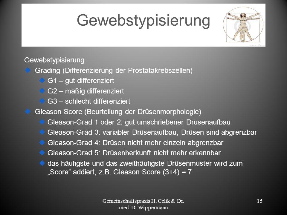 Gewebstypisierung Grading (Differenzierung der Prostatakrebszellen) G1 – gut differenziert G2 – mäßig differenziert G3 – schlecht differenziert Gleaso