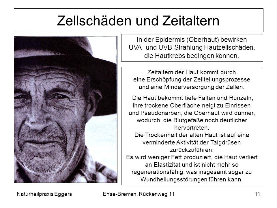Naturheilpraxis EggersEnse-Bremen, Rückenweg 1111 Zellschäden und Zeitaltern Zeitaltern der Haut kommt durch eine Erschöpfung der Zellteilungsprozesse