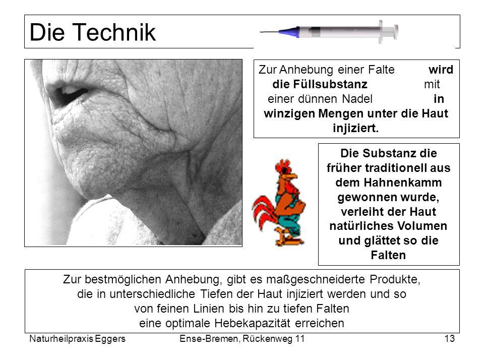 Naturheilpraxis EggersEnse-Bremen, Rückenweg 1113 Die Technik Zur Anhebung einer Falte wird die Füllsubstanz mit einer dünnen Nadel in winzigen Mengen