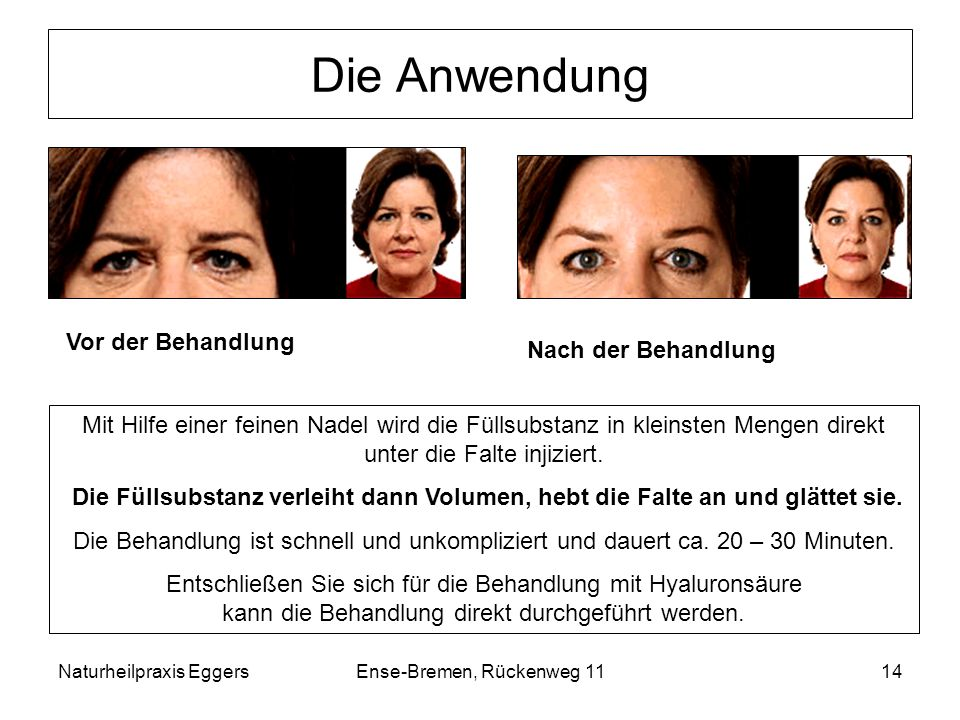 Naturheilpraxis EggersEnse-Bremen, Rückenweg 1114 Die Anwendung Mit Hilfe einer feinen Nadel wird die Füllsubstanz in kleinsten Mengen direkt unter di