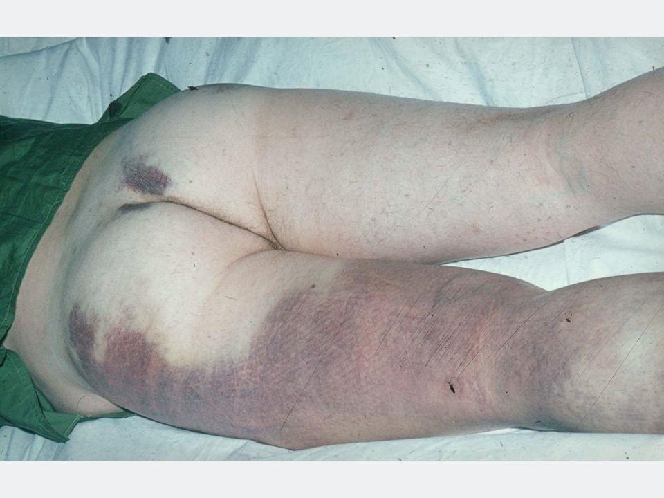 Erstpräsentation am 30.11.2010, Zuweisungsdiagnose: Thrombopenie FA.: negativ TE als Kind, Op an der Nase (rezent) ohne Komplikationen Patientin fühlt sich wohl fast jede Nacht Zahnfleischbluten, ansonsten keine Blutungsmanifestationen Klinische Untersuchung: keine Blutungsneigung 40-jährige Frau