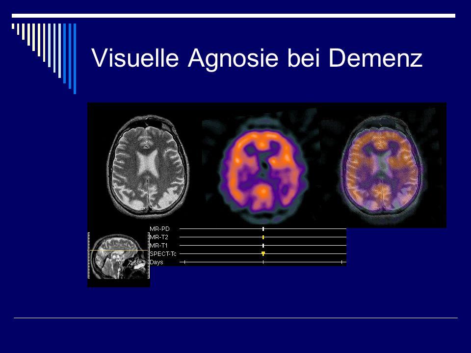 Visuelle Agnosie bei Demenz