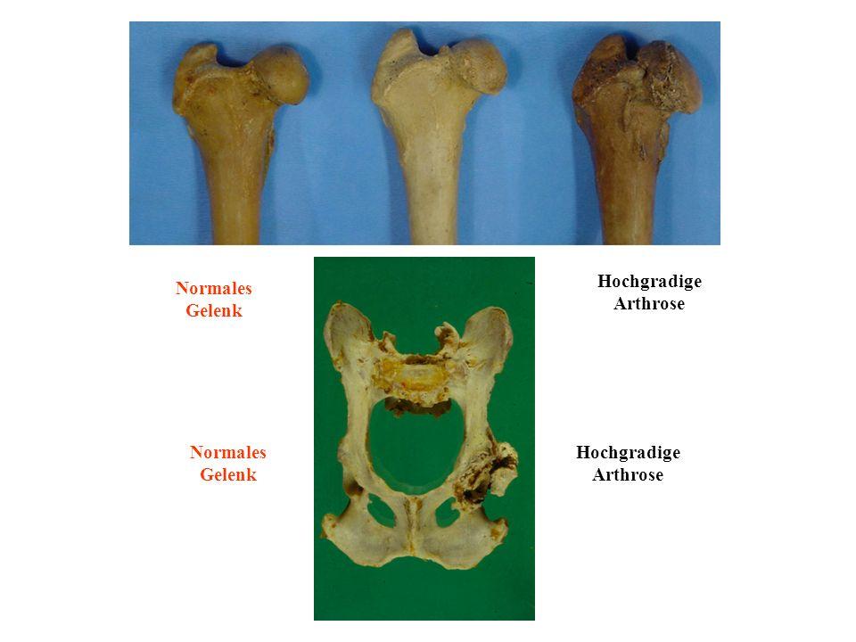 Normales Gelenk Hochgradige Arthrose Normales Gelenk Hochgradige Arthrose