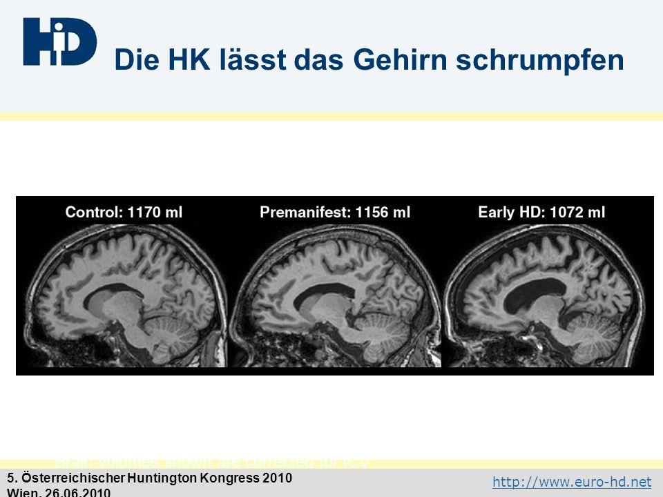 http://www.euro-hd.net 5. Österreichischer Huntington Kongress 2010 Wien, 26.06.2010 Die HK lässt das Gehirn schrumpfen Brain volumes shown are correc