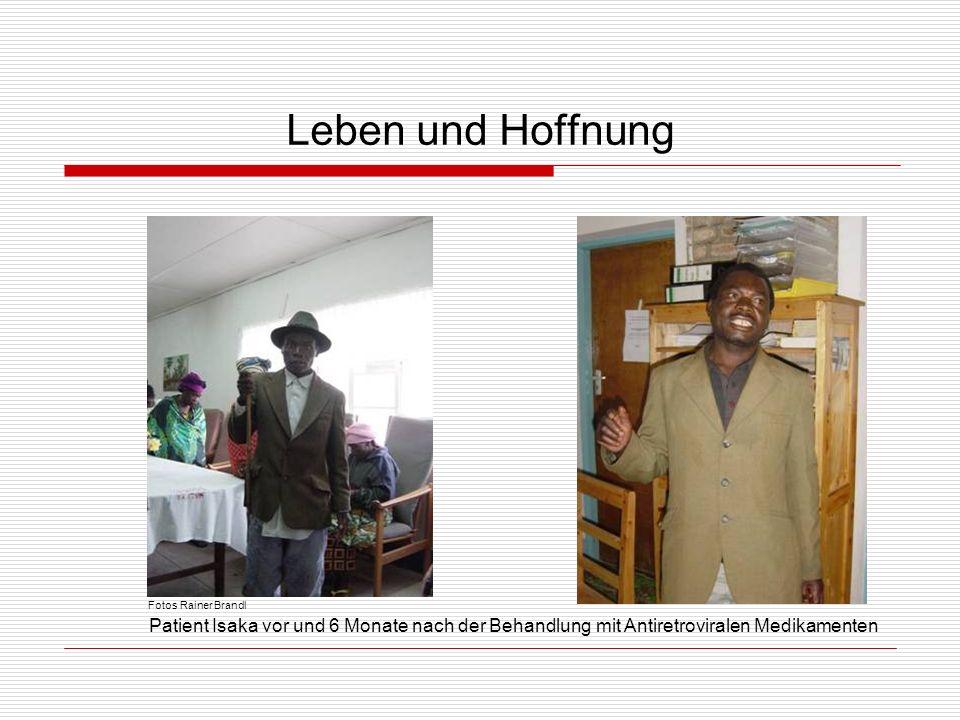 Leben und Hoffnung Patient Isaka vor und 6 Monate nach der Behandlung mit Antiretroviralen Medikamenten Fotos Rainer Brandl