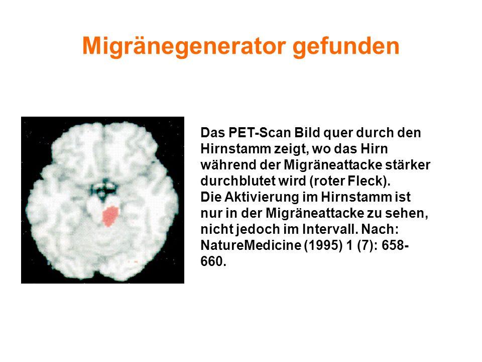 Das PET-Scan Bild quer durch den Hirnstamm zeigt, wo das Hirn während der Migräneattacke stärker durchblutet wird (roter Fleck). Die Aktivierung im Hi