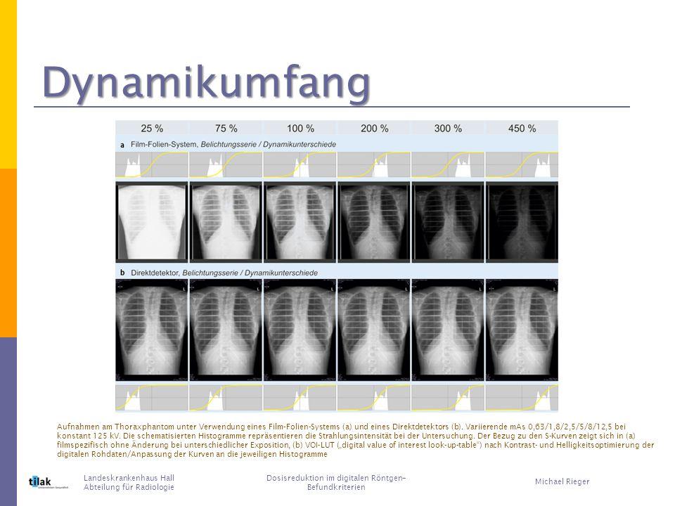 Landeskrankenhaus Hall Abteilung für Radiologie Dosisreduktion im digitalen Röntgen– Befundkriterien Michael Rieger Aufnahmen am Thoraxphantom unter Verwendung eines Film-Folien-Systems (a) und eines Direktdetektors (b).
