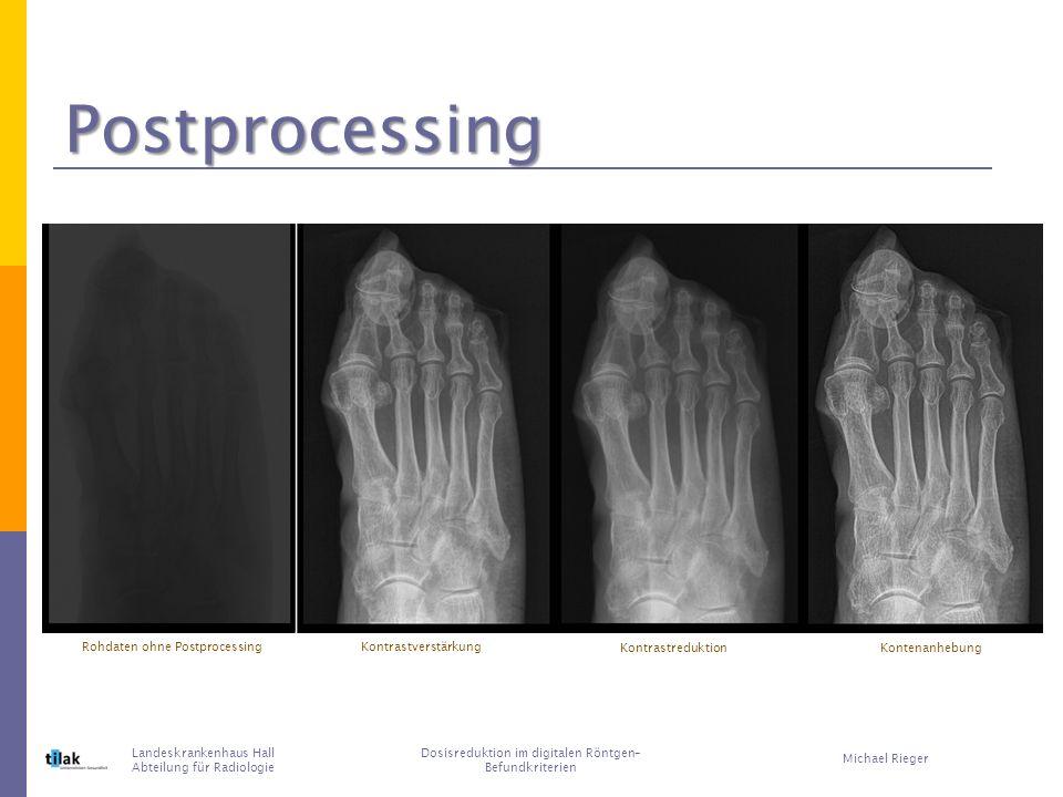 Danke für Ihre Aufmerksamkeit Landeskrankenhaus Hall Abteilung für Radiologie Dosisreduktion im digitalen Röntgen– Befundkriterien Michael Rieger