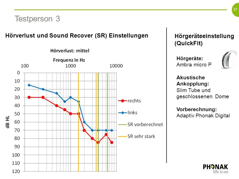 26 HG (QuickFit) und SR vorberechnet versus + 2 Schritte mehr SR 2dB 4dB 18dB