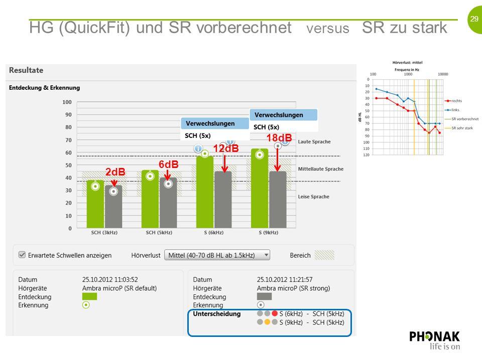 28 Ohne HG versus HG (QuickFit) und SR vorberechnet 16dB 12dB 16dB 10dB