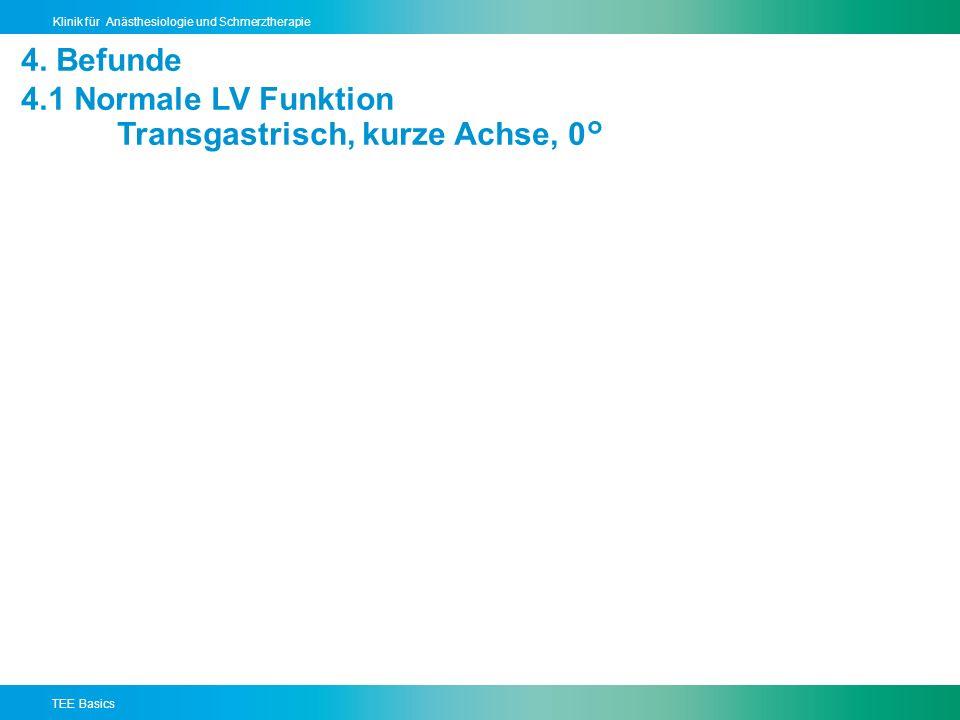 TEE Basics Klinik für Anästhesiologie und Schmerztherapie 4.