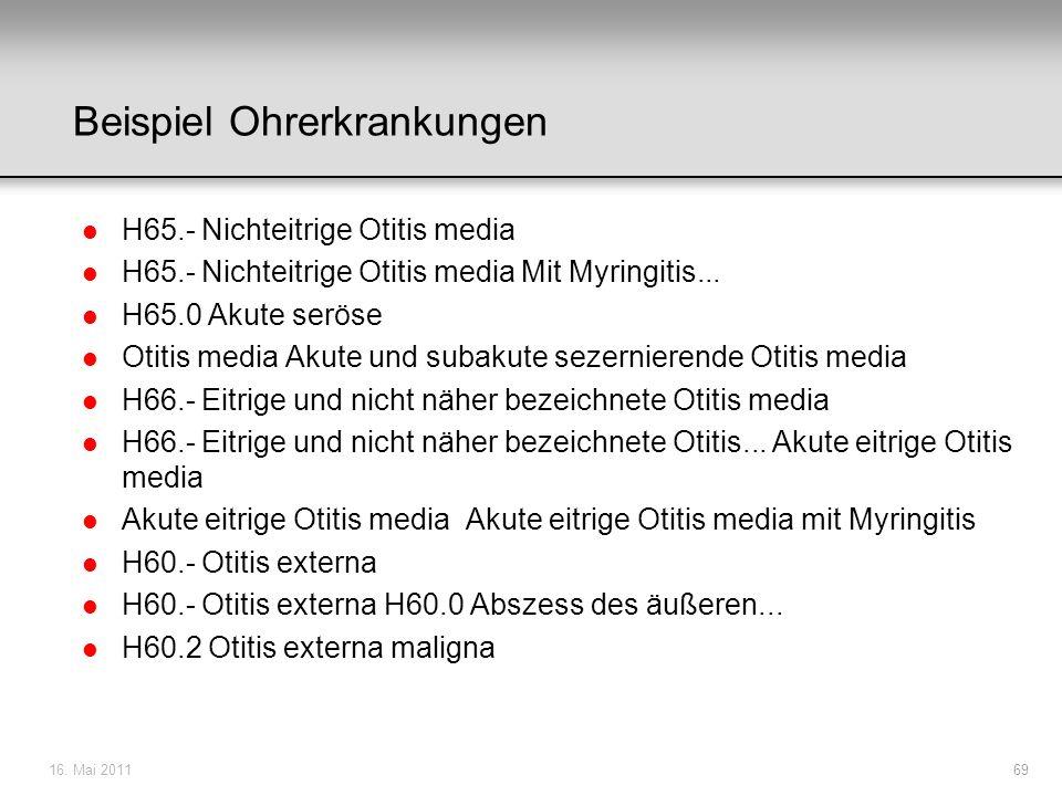 Beispiel Ohrerkrankungen l H65.- Nichteitrige Otitis media l H65.- Nichteitrige Otitis media Mit Myringitis... l H65.0 Akute seröse l Otitis media Aku