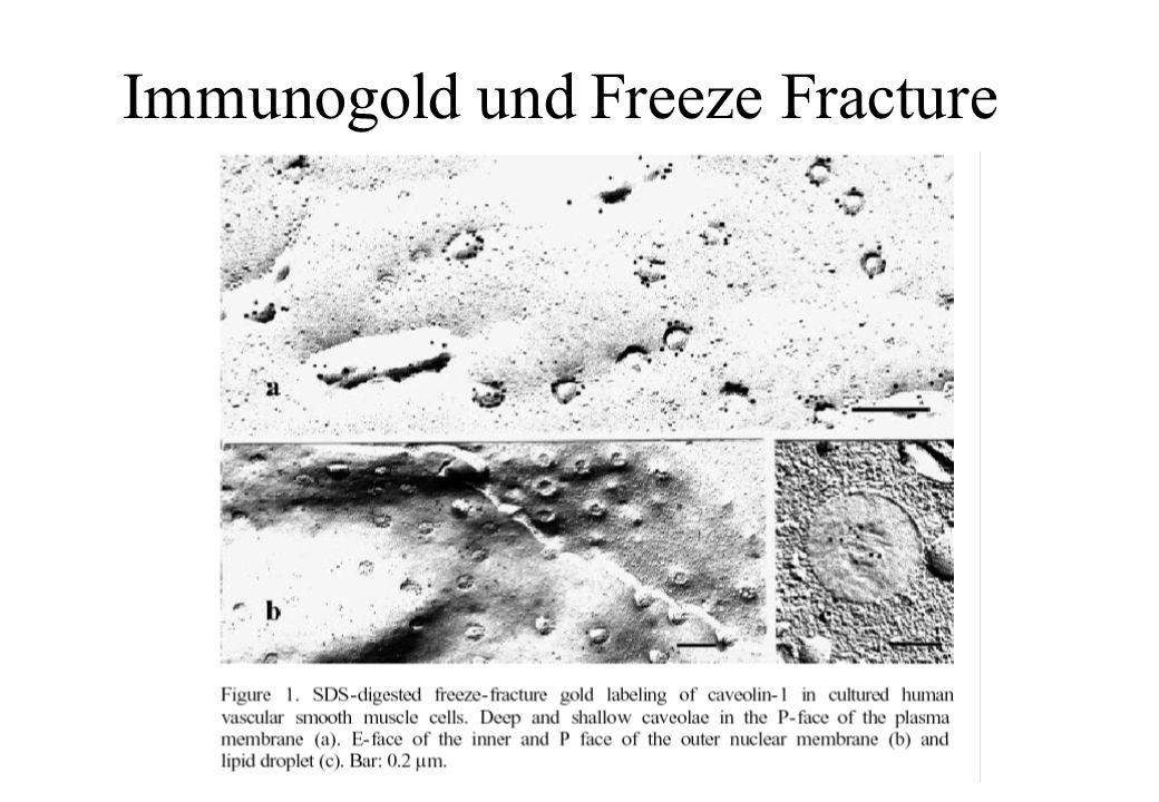 Immunogold und Freeze Fracture