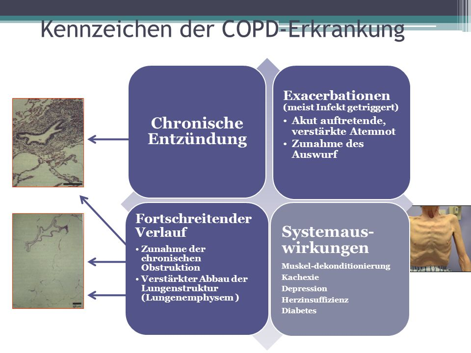Kennzeichen der COPD-Erkrankung Chronische Entzündung Exacerbationen (meist Infekt getriggert) Akut auftretende, verstärkte Atemnot Zunahme des Auswur