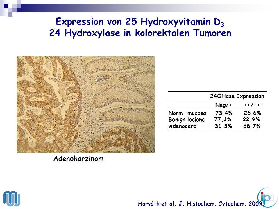 . Expression von 25 Hydroxyvitamin D 3 24 Hydroxylase in kolorektalen Tumoren Horváth et al. J. Histochem. Cytochem. 2009. 24OHase Expression Neg/+ ++