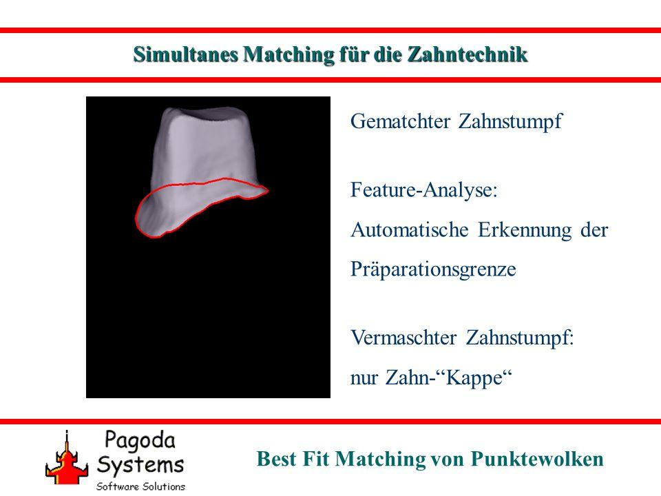 Best Fit Matching von Punktewolken Gematchter Zahnstumpf Feature-Analyse: Automatische Erkennung der Präparationsgrenze Simultanes Matching für die Za