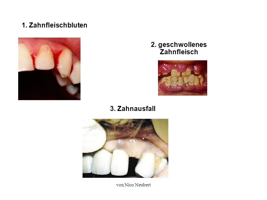 von Nico Neubert 1. Zahnfleischbluten 2. geschwollenes Zahnfleisch 3. Zahnausfall