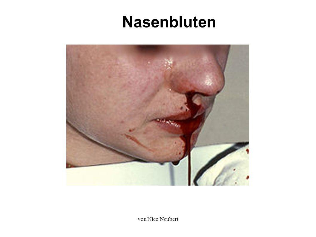 von Nico Neubert Nasenbluten