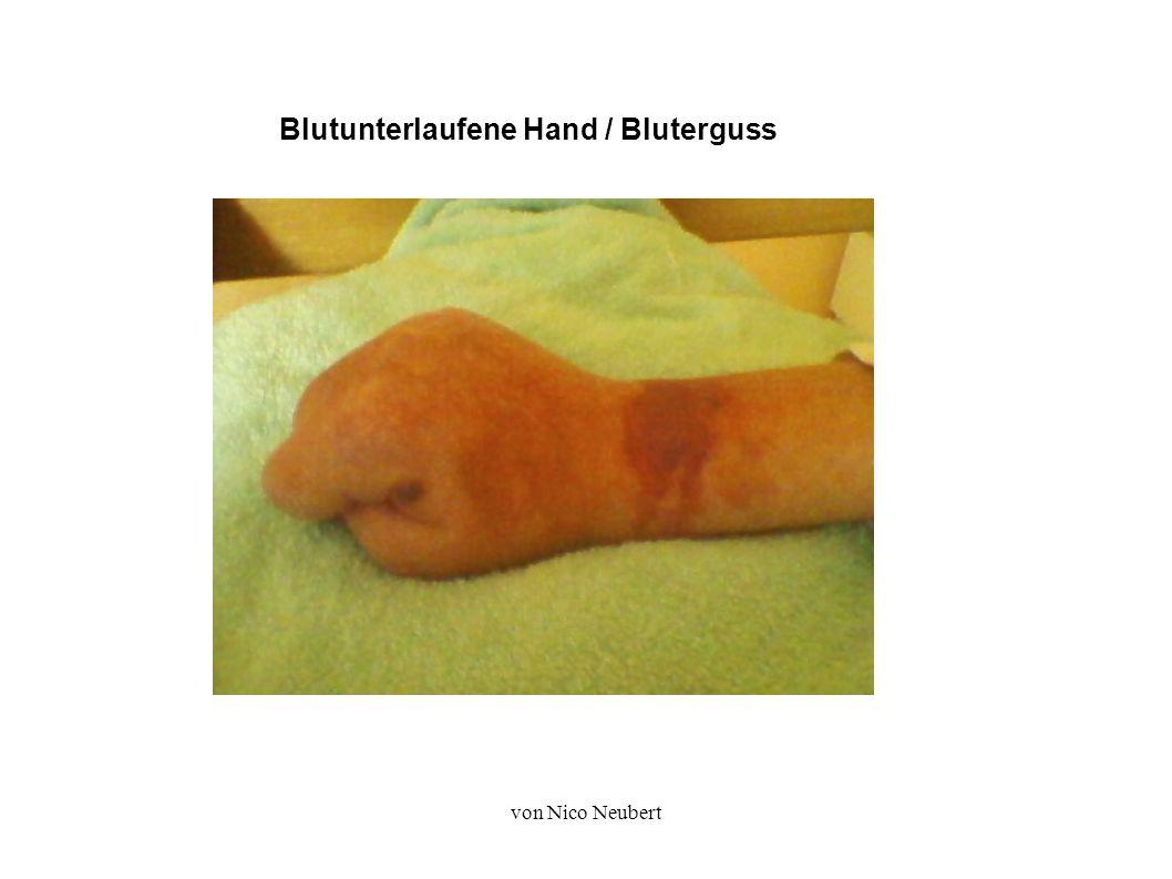 von Nico Neubert Blutunterlaufene Hand / Bluterguss