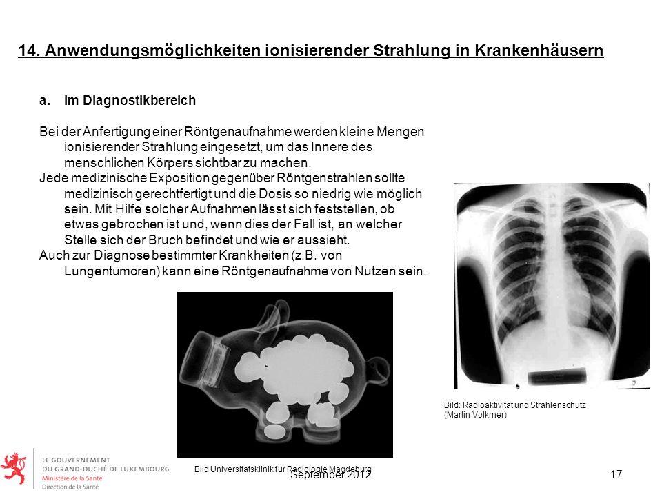 14. Anwendungsmöglichkeiten ionisierender Strahlung in Krankenhäusern a.Im Diagnostikbereich Bei der Anfertigung einer Röntgenaufnahme werden kleine M