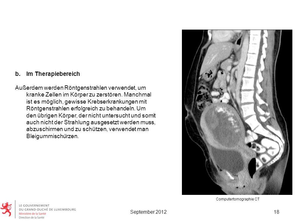 b.Im Therapiebereich Außerdem werden Röntgenstrahlen verwendet, um kranke Zellen im Körper zu zerstören. Manchmal ist es möglich, gewisse Krebserkrank