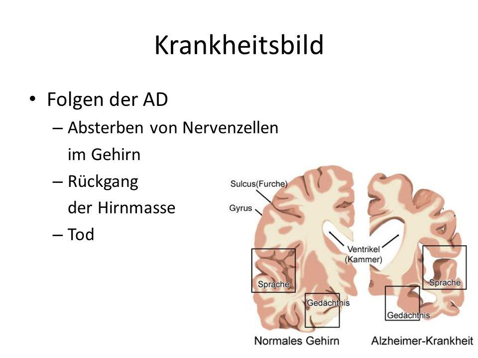 Krankheitsbild Folgen der AD – Absterben von Nervenzellen im Gehirn – Rückgang der Hirnmasse – Tod 18