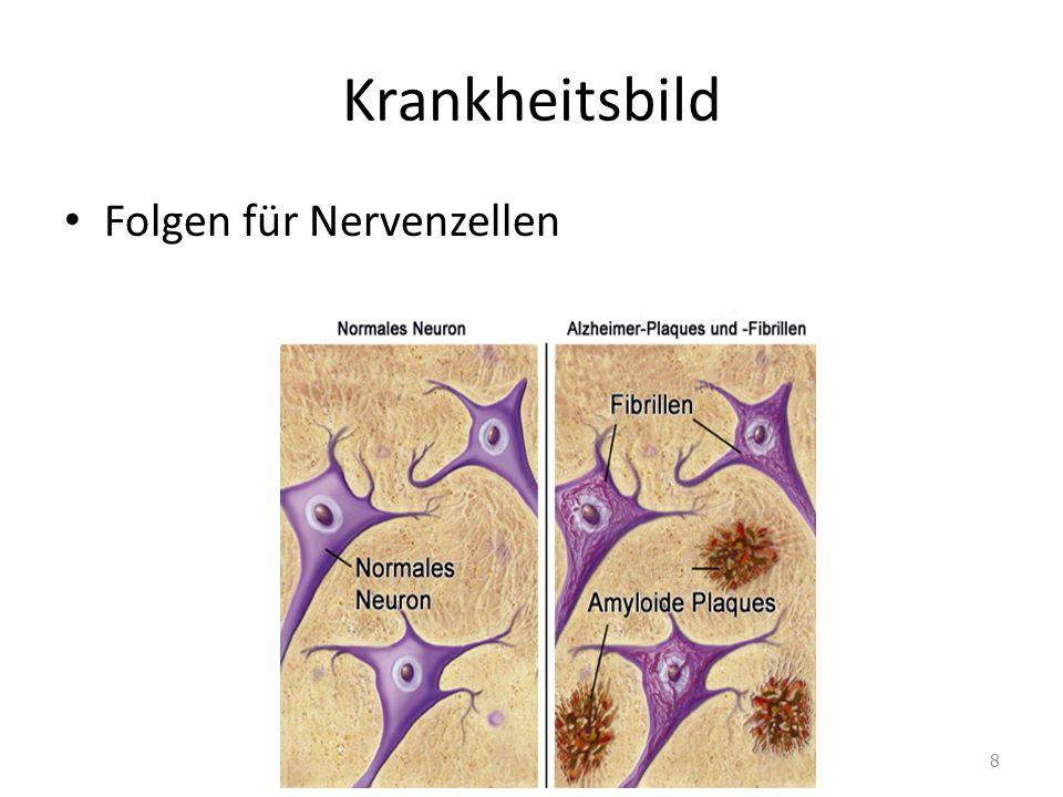 Krankheitsbild Folgen für Nervenzellen 8