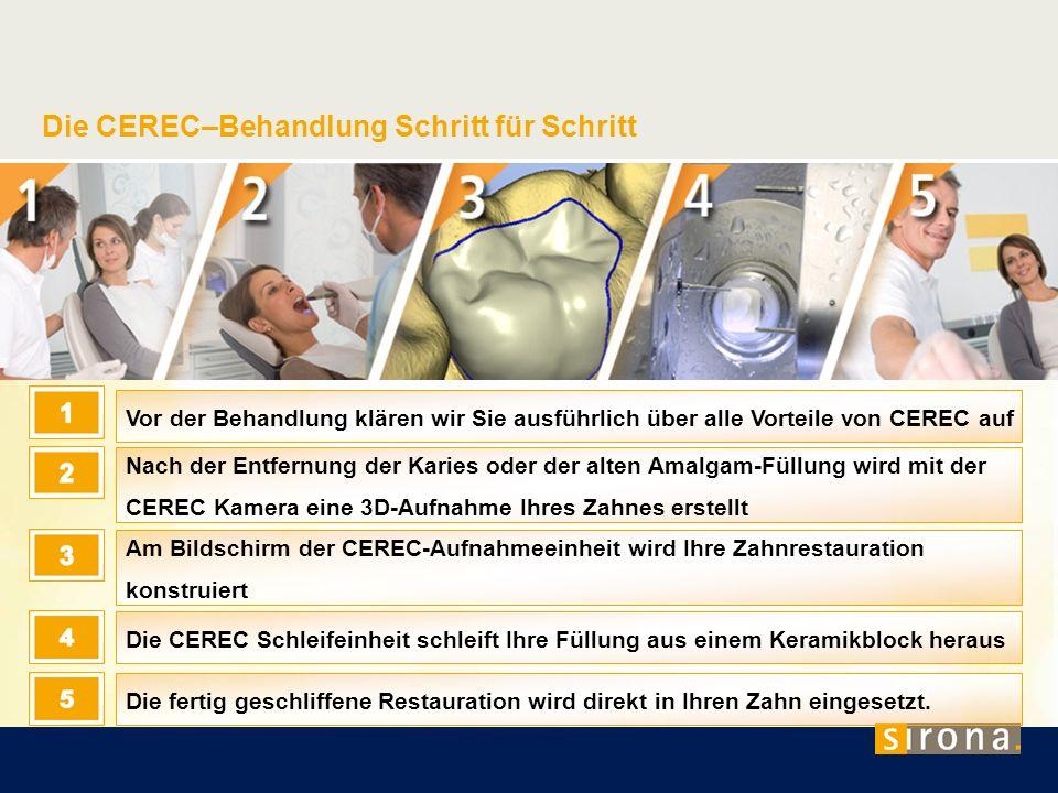 Die CEREC–Behandlung Schritt für Schritt Vor der Behandlung klären wir Sie ausführlich über alle Vorteile von CEREC auf Nach der Entfernung der Karies