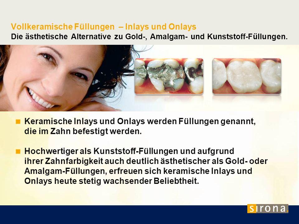 Vollkeramische Füllungen – Inlays und Onlays Die ästhetische Alternative zu Gold-, Amalgam- und Kunststoff-Füllungen. Keramische Inlays und Onlays wer