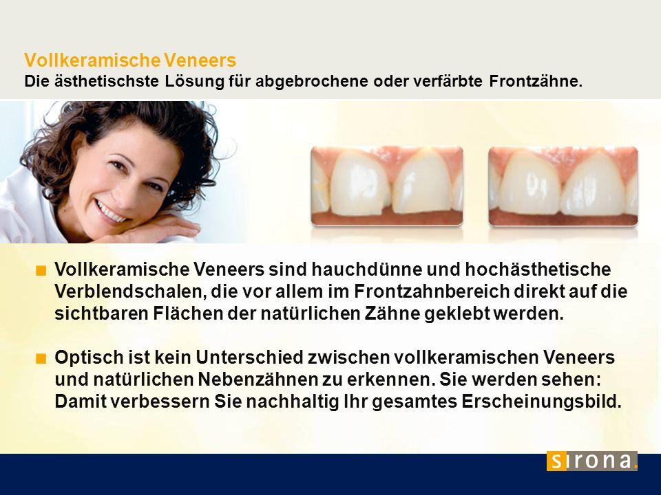 Vollkeramische Veneers Die ästhetischste Lösung für abgebrochene oder verfärbte Frontzähne. Vollkeramische Veneers sind hauchdünne und hochästhetische