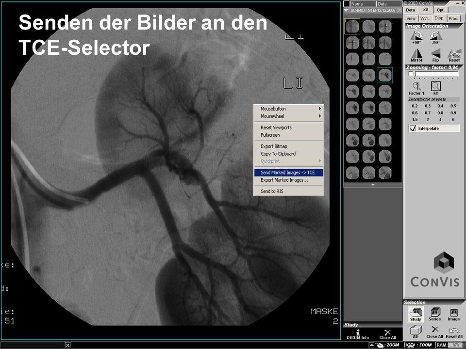 Senden der Bilder an den TCE-Selector