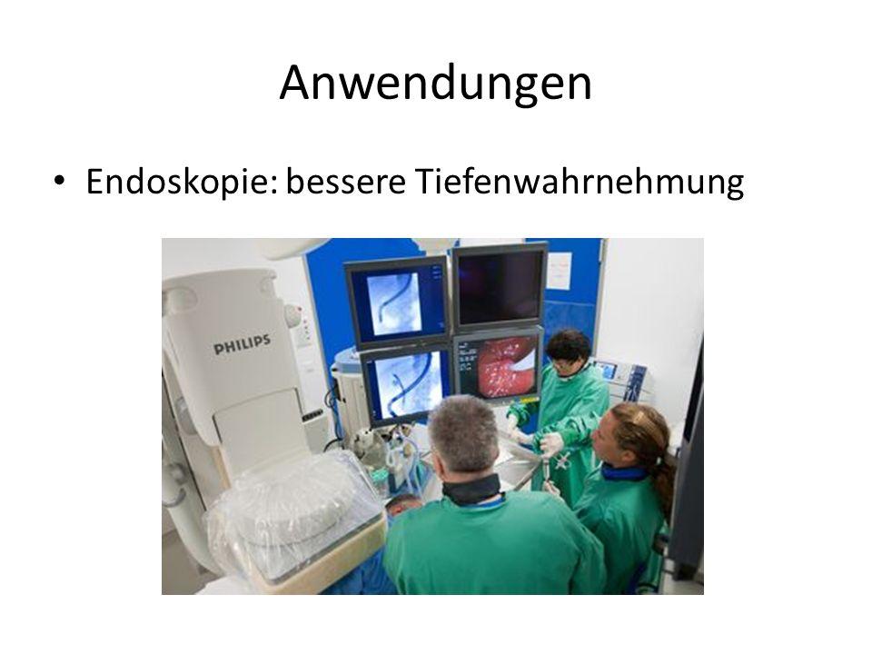 Anwendungen Endoskopie: bessere Tiefenwahrnehmung