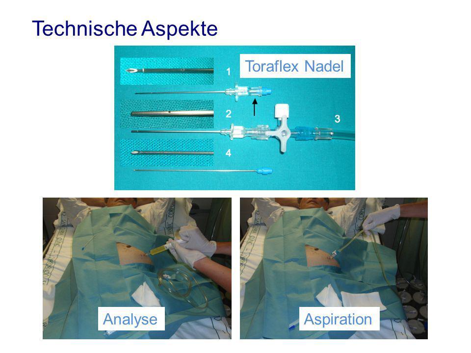 Technische Aspekte Toraflex Nadel AnalyseAspiration
