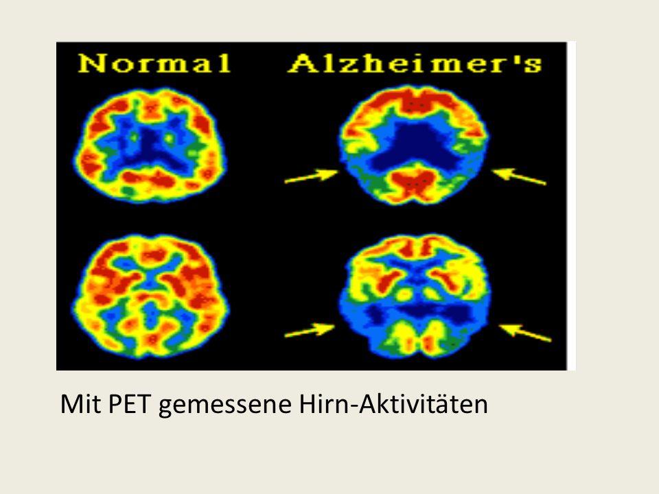 Mit PET gemessene Hirn-Aktivitäten