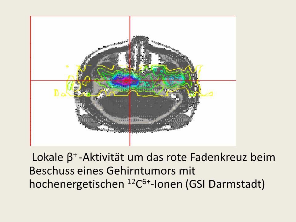 Lokale β + -Aktivität um das rote Fadenkreuz beim Beschuss eines Gehirntumors mit hochenergetischen 12 C 6+ -Ionen (GSI Darmstadt)