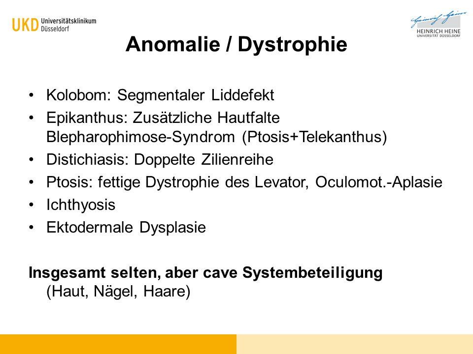 Anomalie / Dystrophie Kolobom: Segmentaler Liddefekt Epikanthus: Zusätzliche Hautfalte Blepharophimose-Syndrom (Ptosis+Telekanthus) Distichiasis: Dopp