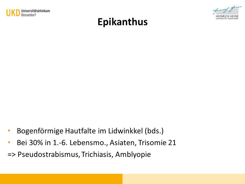Epikanthus Bogenförmige Hautfalte im Lidwinkkel (bds.) Bei 30% in 1.-6. Lebensmo., Asiaten, Trisomie 21 => Pseudostrabismus, Trichiasis, Amblyopie