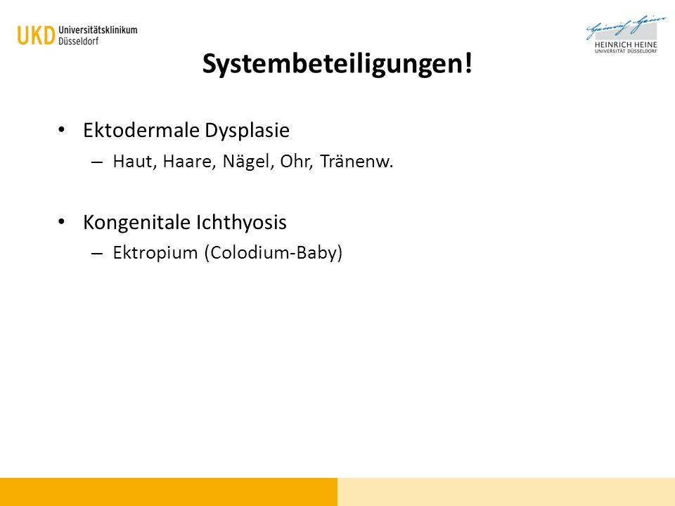 Systembeteiligungen! Ektodermale Dysplasie – Haut, Haare, Nägel, Ohr, Tränenw. Kongenitale Ichthyosis – Ektropium (Colodium-Baby)