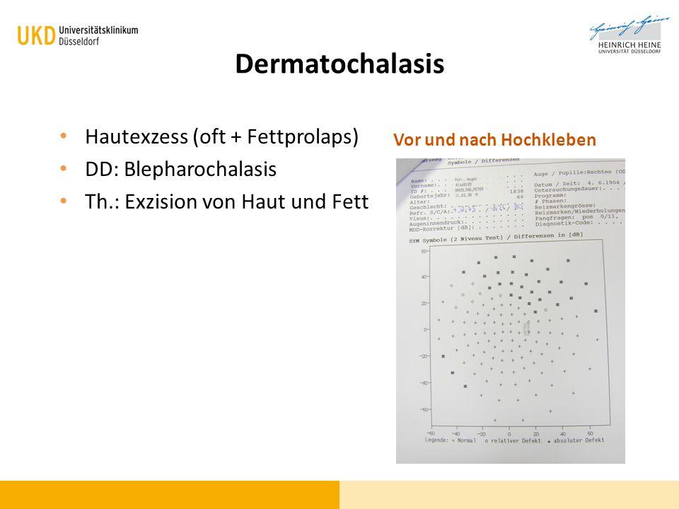 Dermatochalasis Hautexzess (oft + Fettprolaps) DD: Blepharochalasis Th.: Exzision von Haut und Fett Vor und nach Hochkleben